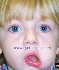 This causes the eyelid to open (increase in the palbebral fissure) with movements of the mouth